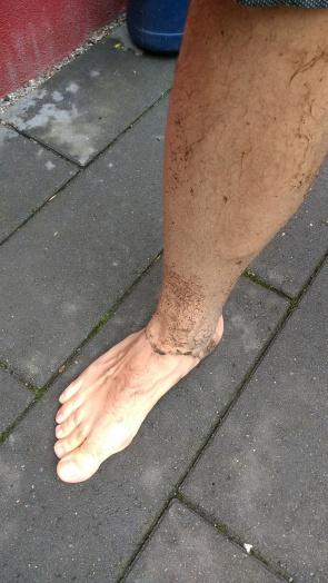 04 dirty leg